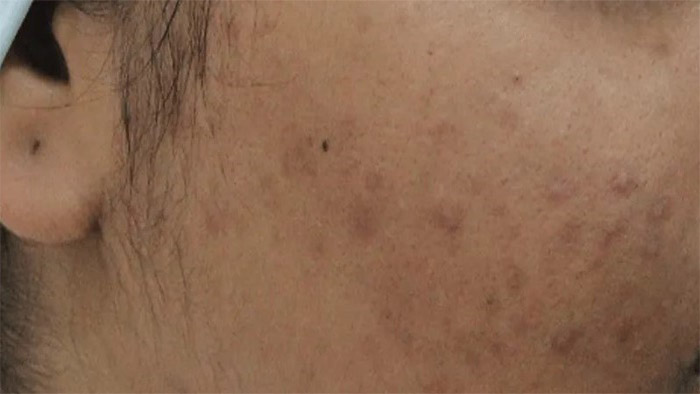 Before (Acne)