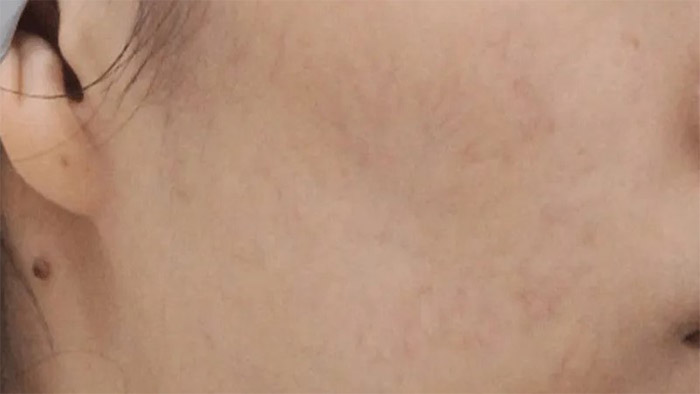 After (Acne)