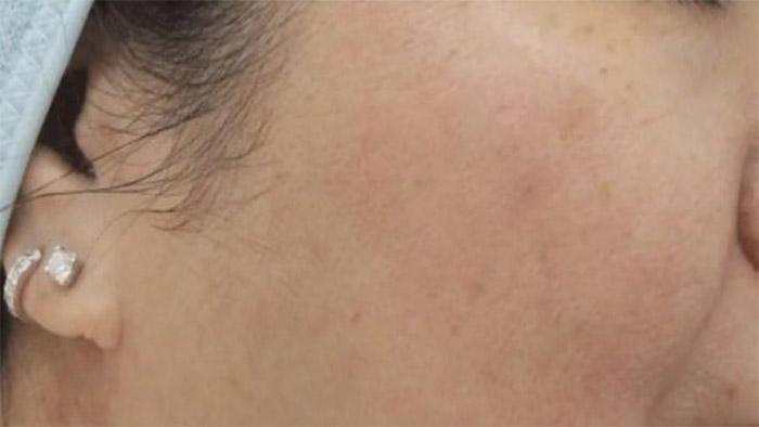 Before (Open Pores)