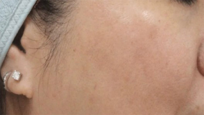 After (Open Pores)