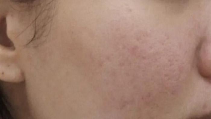 Before (Sensitive Skin)