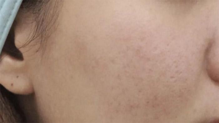 After (Sensitive Skin)